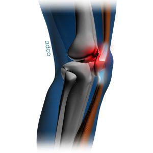 Χονδρομαλάκυνση στο εσωτερικό τμήμα του γόνατου