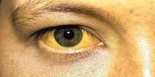 Κίτρινο μάτι - ίκτερος
