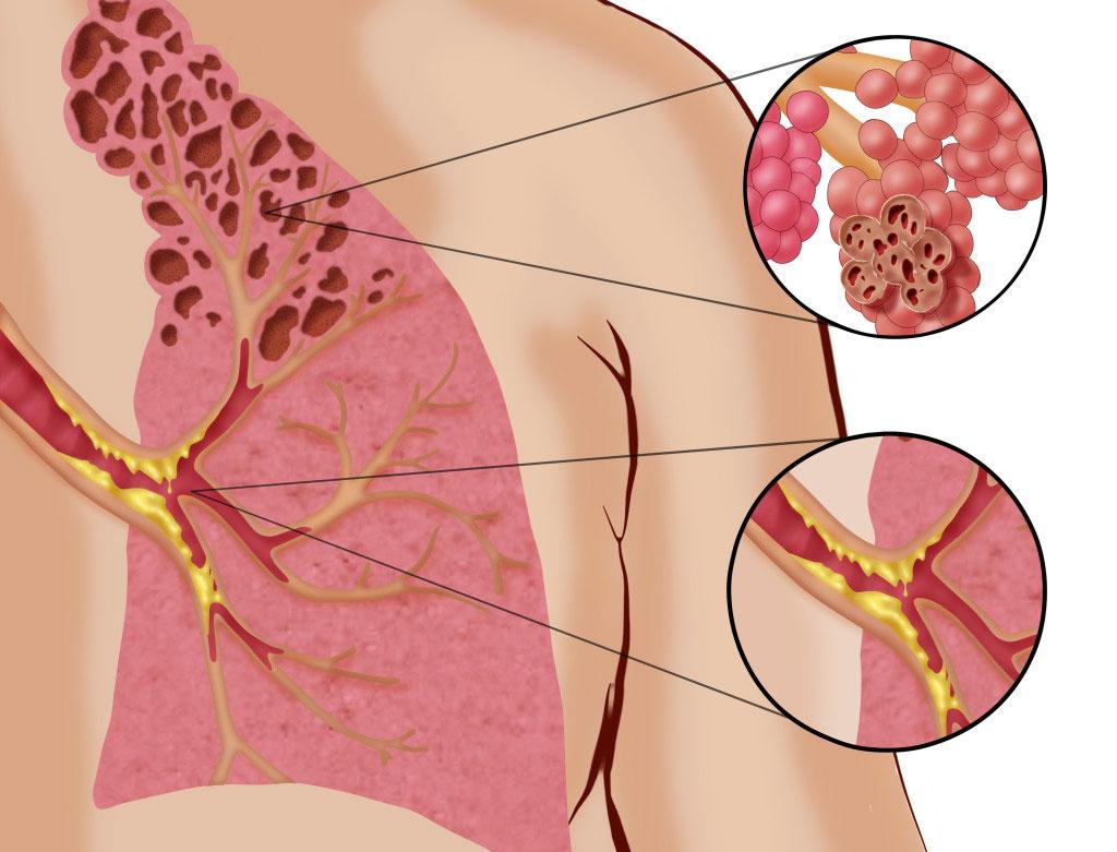 κυψέλες - χρόνια αποφρακτική πνευμονοπάθεια
