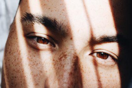 Πρησμένα μάτια άντρας
