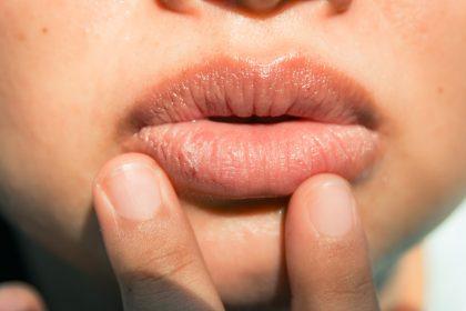 Σκασμένα χείλη: Αίτια, αντιμετώπιση και θεραπεία