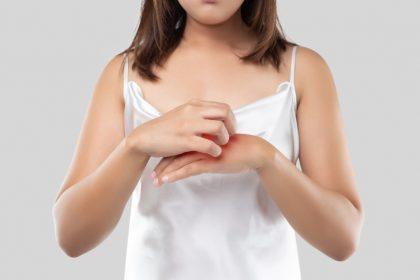 μύκητες γυναίκα ξύνει το χέρι της