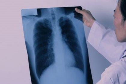 πνευμονική αρτηριακή υπέρταση ακτινογραφία πνευμόνων