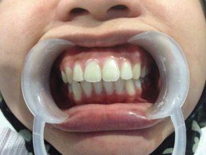 ουλίτιδα γυναίκα στον οδοντίατρο με λευκά δόντια