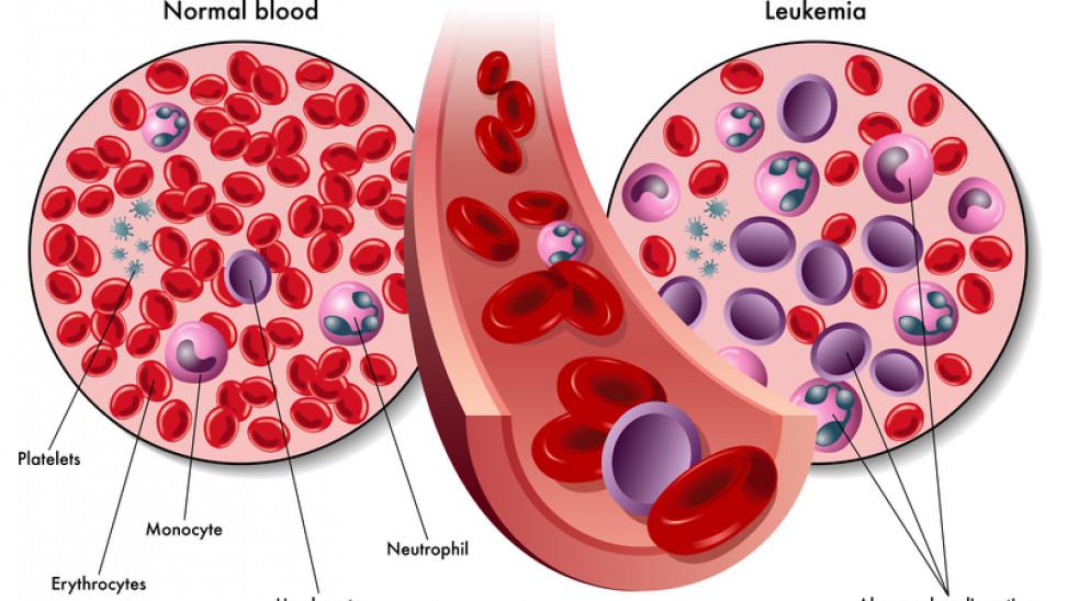 Η λευχαιμία μπορεί να επηρεάσει τα ερυθρά και τα λευκά αιμοσφαίρια και τα αιμοπετάλια