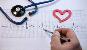 Γιατρός σχηματίζει ένα καρδιογράφημα