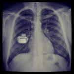 Βηματοδότης σε ακτινογραφία