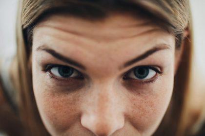 φωτοευαισθησία στα μάτια γυναίκα με μπλε μάτια