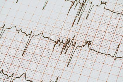 κίνδυνος θανατηφόρου εμφράγματος σε υπερηχογράφημα καρδιάς