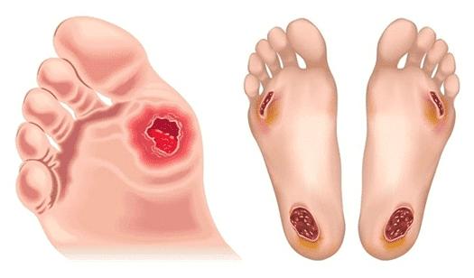 Διαβητικό πόδι