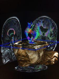 σχιζοφρένεια ηβηφρένεια