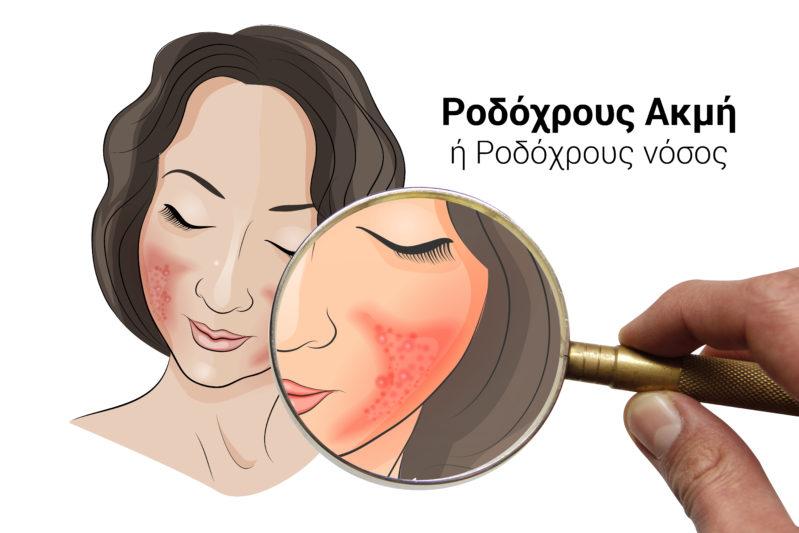Ροδόχρους νόσος