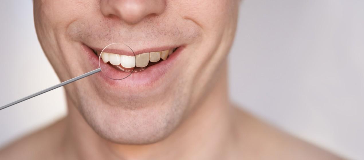συνέπειες από πέτρα στα δόντια σε άνδρα με κίτρινα δόντια