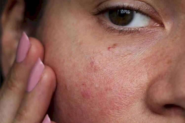 εξανθήματα στο σώμα άγχος κόκκινα σημάδια στο πρόσωπο