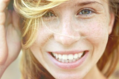 Πέσιμο των δοντιών: Χαμόγελο