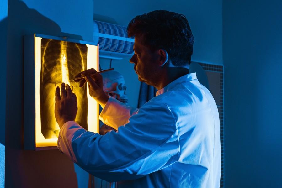 Κυστική ίνωση - γιατρός κοιτάζει ακτινογραφία