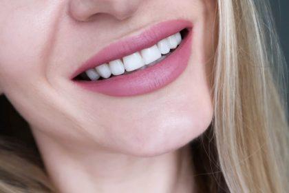 γυναίκα που χαμογελάει μετά τον καθαρισμό από πέτρα στα δόντια