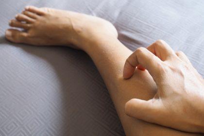 αγγειίτιδα φυσική αντιμετώπιση εξανθήματα στο πόδι