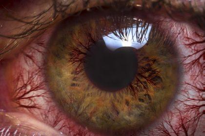 Κόκκινα μάτια: Aίτια και αντιμετώπιση