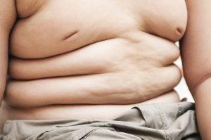 Παχυσαρκία στα παιδιά