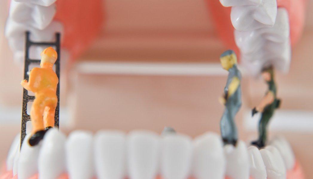 σφίξιμο των δοντιών μασέλα λευκά δόντια