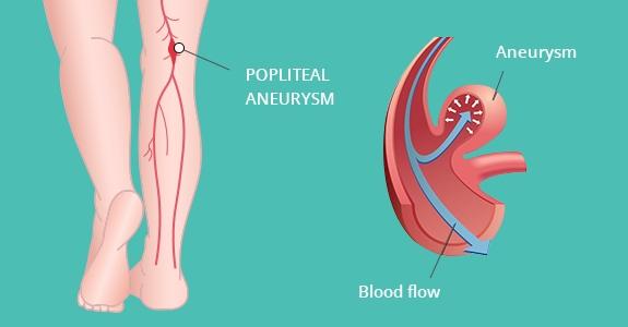 Ανεύρυσμα στο πόδι σε σκίτσο