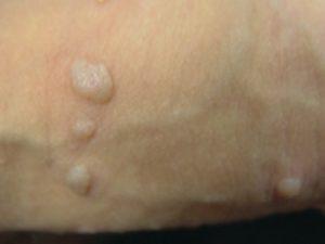 κονδυλώματα πέους μικρά σπυριά πάνω στο πέος που ενώνονται