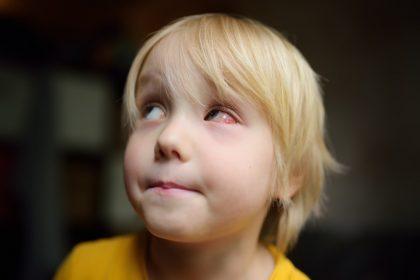 Αγόρι με επιπεφυκίτιδα