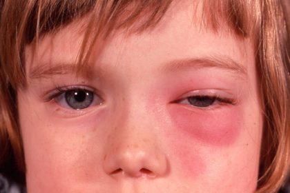 Ίωση που χτυπάει στα μάτια και μπορεί να οδηγήσει στην τύφλωση
