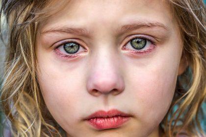 αιμομιξία επιπτώσεις παιδί με πράσινα μάτια κλαίει