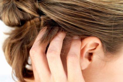 Ξηροδερμία στο κεφάλι