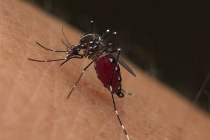 Τσίμπημα κουνουπιού