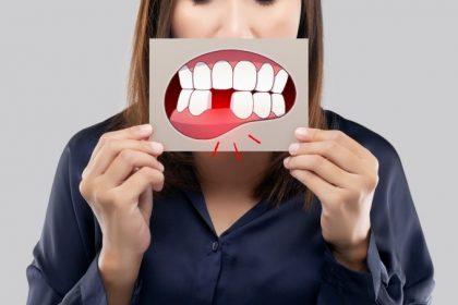 οδοντικό κάταγμα