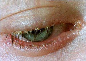 βλεφαρίτιδα τσούξιμο στα μάτια κόκκινο μάτι με τσίμπλες
