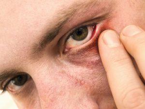 οφθαλμική ροδόχρους νόσος τσούξιμο στα μάτια κόκκινα μάτια που τσούξουν με εξανθήματα
