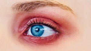 ηλιακό έγκαυμα στα μάτια τσούξιμο στα μάτια που πονάει και καίει