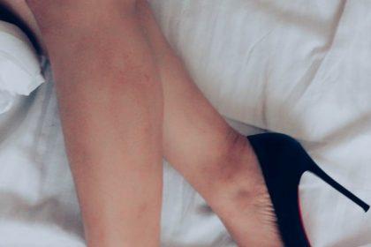 κόκκινα εξανθήματα στα πόδια πόδια με τακούνια
