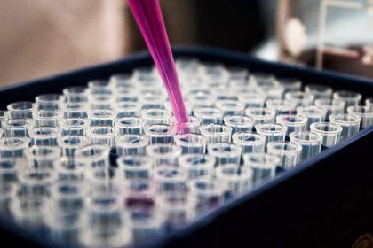 als γονίδια εργαστήριο