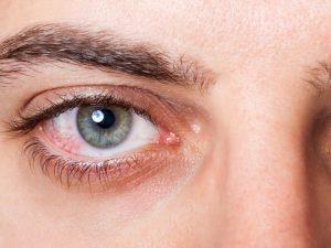 ξηροφθαλμία τσούξιμο στα μάτια κόκκινα στεγνά μάτια που τσούζουν
