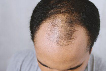 Αραίωση μαλλιών στο μπροστινό μέρος της κεφαλής