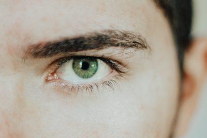 αιμάτωμα στα μάτια από πίεση